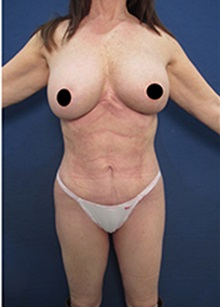 Liposuction After Photo by Arian Mowlavi, MD; Laguna Beach, CA - Case 34327