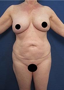 Liposuction Before Photo by Arian Mowlavi, MD; Laguna Beach, CA - Case 34327