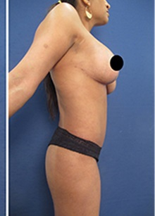 Body Contouring After Photo by Arian Mowlavi, MD; Laguna Beach, CA - Case 35188
