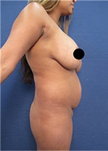 Body Contouring Before Photo by Arian Mowlavi, MD; Laguna Beach, CA - Case 35188