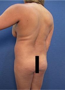 Body Contouring Before Photo by Arian Mowlavi, MD; Laguna Beach, CA - Case 35188