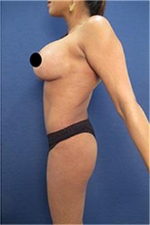 Body Contouring After Photo by Arian Mowlavi, MD; Laguna Beach, CA - Case 35188