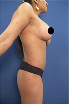 Breast Lift After Photo by Arian Mowlavi, MD; Laguna Beach, CA - Case 35191