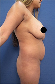Breast Lift Before Photo by Arian Mowlavi, MD; Laguna Beach, CA - Case 35191