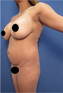 Breast Lift Before Photo by Arian Mowlavi, MD; Laguna Beach, CA - Case 35191