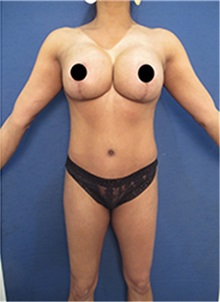 Breast Lift After Photo by Arian Mowlavi, MD; Laguna Beach, CA - Case 35191