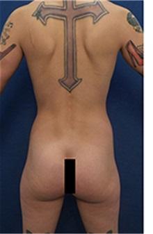 Body Contouring Before Photo by Arian Mowlavi, MD; Laguna Beach, CA - Case 35193