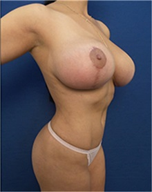 Body Contouring After Photo by Arian Mowlavi, MD; Laguna Beach, CA - Case 35194