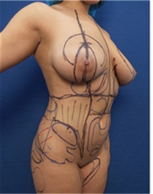 Body Contouring Before Photo by Arian Mowlavi, MD; Laguna Beach, CA - Case 35194