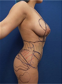 Body Contouring Before Photo by Arian Mowlavi, MD; Laguna Beach, CA - Case 35194