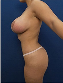 Body Contouring After Photo by Arian Mowlavi, MD; Laguna Beach, CA - Case 35194