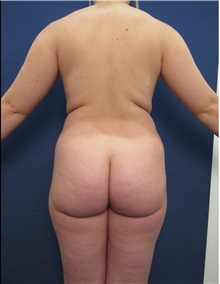 Buttock Lift with Augmentation Before Photo by Arian Mowlavi, MD; Laguna Beach, CA - Case 35196