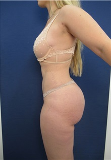 Buttock Lift with Augmentation After Photo by Arian Mowlavi, MD; Laguna Beach, CA - Case 35196