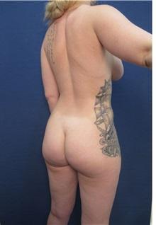 Body Contouring Before Photo by Arian Mowlavi, MD; Laguna Beach, CA - Case 35197