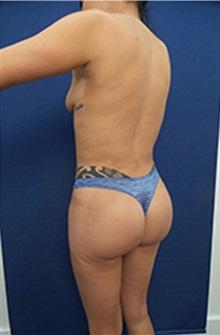 Body Contouring After Photo by Arian Mowlavi, MD; Laguna Beach, CA - Case 35200