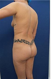 Body Contouring Before Photo by Arian Mowlavi, MD; Laguna Beach, CA - Case 35200