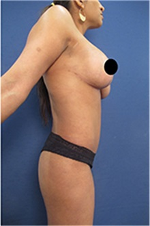 Tummy Tuck After Photo by Arian Mowlavi, MD; Laguna Beach, CA - Case 35203