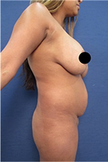 Tummy Tuck Before Photo by Arian Mowlavi, MD; Laguna Beach, CA - Case 35203