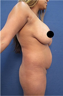 Breast Augmentation Before Photo by Arian Mowlavi, MD; Laguna Beach, CA - Case 35222