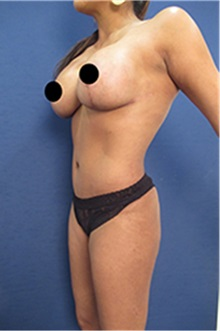 Breast Augmentation After Photo by Arian Mowlavi, MD; Laguna Beach, CA - Case 35222