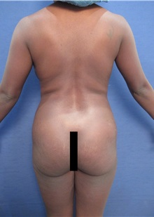 Body Contouring Before Photo by Arian Mowlavi, MD; Laguna Beach, CA - Case 35223