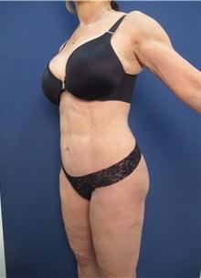 Tummy Tuck After Photo by Arian Mowlavi, MD; Laguna Beach, CA - Case 35229