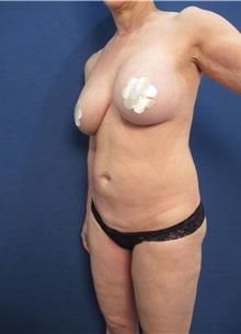 Tummy Tuck Before Photo by Arian Mowlavi, MD; Laguna Beach, CA - Case 35229