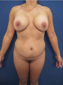 Body Contouring Before Photo by Arian Mowlavi, MD; Laguna Beach, CA - Case 35231