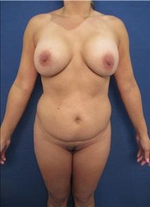 Tummy Tuck Before Photo by Arian Mowlavi, MD; Laguna Beach, CA - Case 35232
