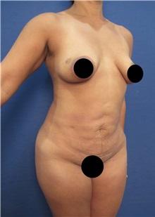 Body Contouring Before Photo by Arian Mowlavi, MD; Laguna Beach, CA - Case 35360