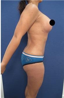 Breast Lift After Photo by Arian Mowlavi, MD; Laguna Beach, CA - Case 35361
