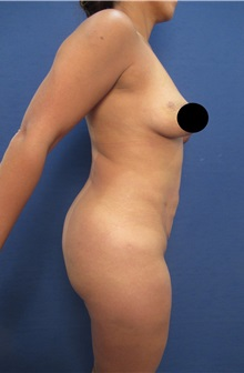 Breast Lift Before Photo by Arian Mowlavi, MD; Laguna Beach, CA - Case 35361