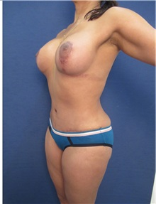 Buttock Implants After Photo by Arian Mowlavi, MD; Laguna Beach, CA - Case 35362
