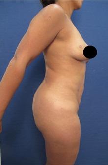 Buttock Implants Before Photo by Arian Mowlavi, MD; Laguna Beach, CA - Case 35362