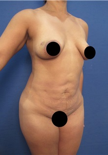 Tummy Tuck Before Photo by Arian Mowlavi, MD; Laguna Beach, CA - Case 35364
