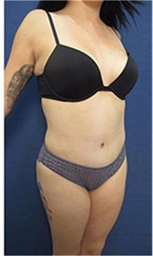 Tummy Tuck After Photo by Arian Mowlavi, MD; Laguna Beach, CA - Case 35367