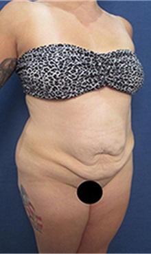 Tummy Tuck Before Photo by Arian Mowlavi, MD; Laguna Beach, CA - Case 35367