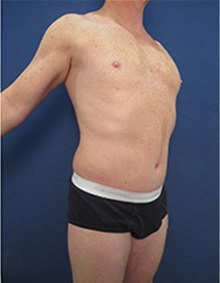 Body Contouring After Photo by Arian Mowlavi, MD; Laguna Beach, CA - Case 35389