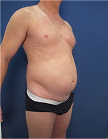 Body Contouring Before Photo by Arian Mowlavi, MD; Laguna Beach, CA - Case 35389