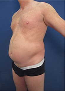 Tummy Tuck Before Photo by Arian Mowlavi, MD; Laguna Beach, CA - Case 35391