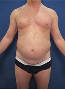 Tummy Tuck Before Photo by Arian Mowlavi, MD; Laguna Beach, CA - Case 35391