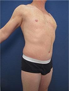 Tummy Tuck After Photo by Arian Mowlavi, MD; Laguna Beach, CA - Case 35391