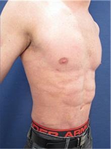 Body Contouring After Photo by Arian Mowlavi, MD; Laguna Beach, CA - Case 35393