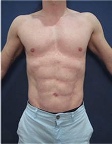 Body Contouring After Photo by Arian Mowlavi, MD; Laguna Beach, CA - Case 35394