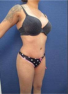 Body Contouring After Photo by Arian Mowlavi, MD; Laguna Beach, CA - Case 35422