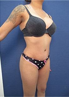 Buttock Lift with Augmentation After Photo by Arian Mowlavi, MD; Laguna Beach, CA - Case 35423
