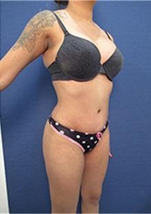 Liposuction After Photo by Arian Mowlavi, MD; Laguna Beach, CA - Case 35427