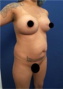 Liposuction Before Photo by Arian Mowlavi, MD; Laguna Beach, CA - Case 35427