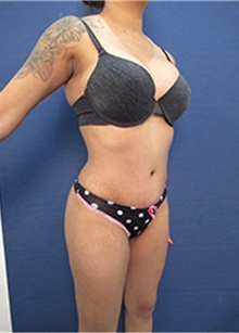 Tummy Tuck After Photo by Arian Mowlavi, MD; Laguna Beach, CA - Case 35430