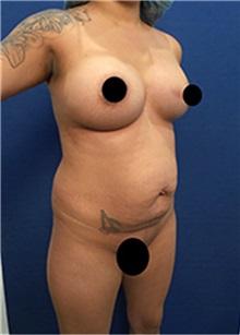 Tummy Tuck Before Photo by Arian Mowlavi, MD; Laguna Beach, CA - Case 35430